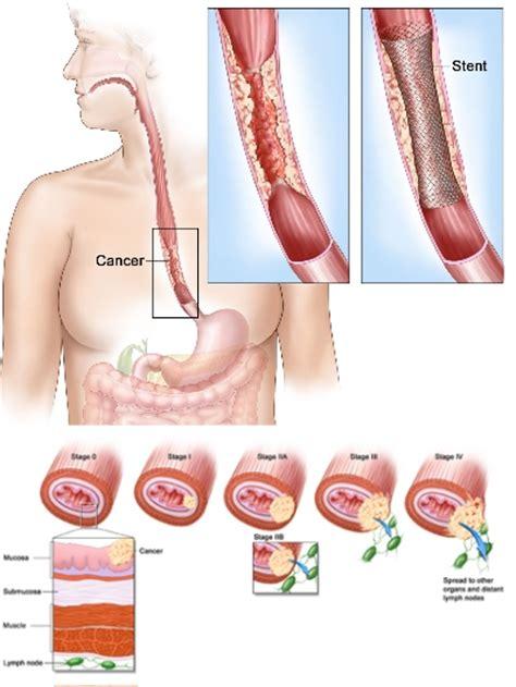 esofagite alimentazione alimentazione reflusso gastroesofageo reflusso