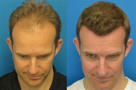 does fue hair transplant work hair transplant photo results 4507 grafts hasson wong