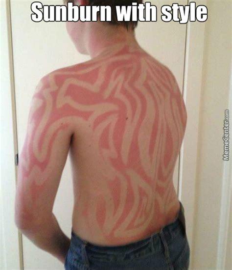 Tan Lines Meme - sunburn memes best collection of funny sunburn pictures