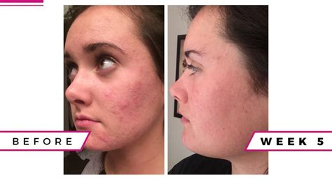 Katharine Clears Up Tales by Clear Up Acne Naturally
