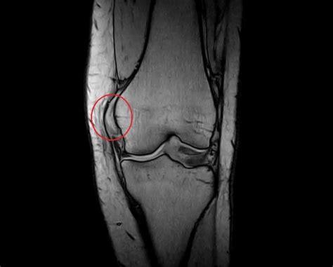 dolore interno al ginocchio lesione collaterale mediale ginocchio sintomi