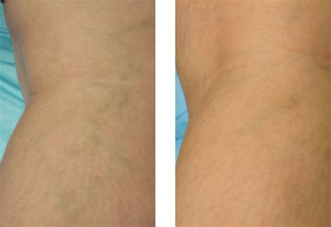 sclerotherapy vein treatment san diego spider and