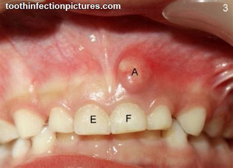 tooth infection zithromax for tooth infection