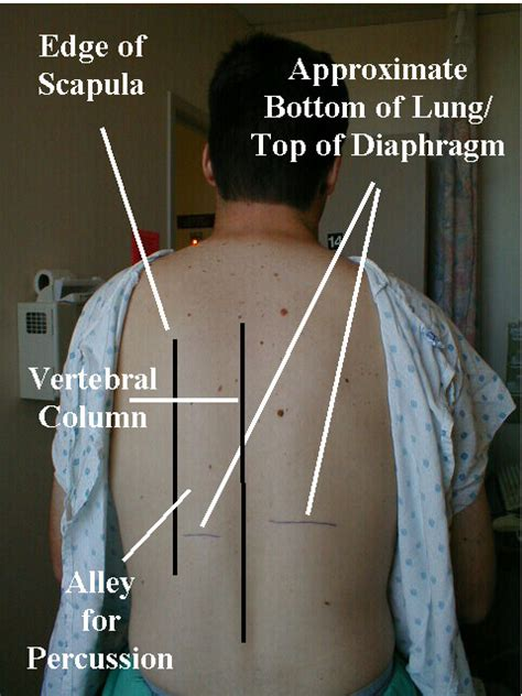where are your lungs located in your diagram where are your lungs located in your back diagram