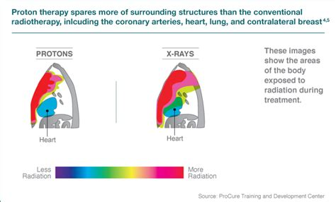 Seattle Proton Therapy by Proton Therapy Advantages Benefits Seattle Cancer Care