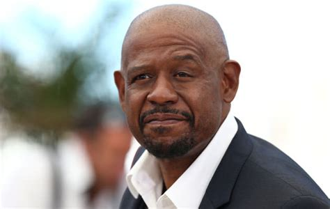 forest whitaker condition 15 celebrities with physical deformities page 13 of 16