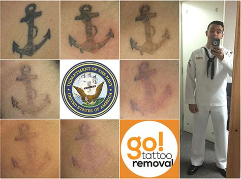 army tattoo removal and responder discount laser
