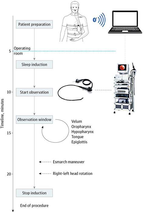 sleep drug drug induced sleep endoscopy with online cardiorespiratory