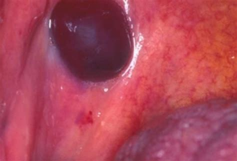 blister on inside of mouth blood blister in mouth cheek cancer sudden painless