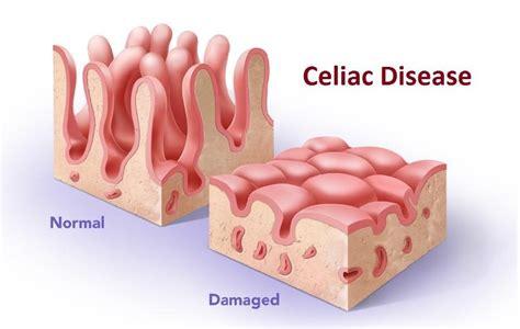 Celiac Stool Pictures by Celiac Disease Symptoms Diet Causes Test Treatment