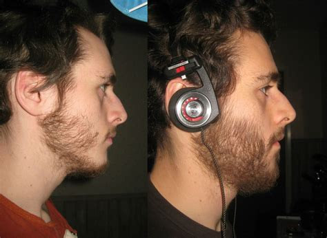 rogaine success stories in men so can rogaine make you grow more facial hair