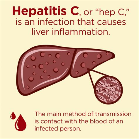Detoxing Liver Heptiitis C by Hepatitis C By The Numbers Facts Stats And You