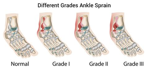 boat shoes hurt ankle how to heal a sprained ankle fast enkimd