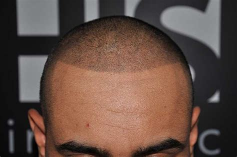 tattoo hairline hair loss help forums going in to look ink today