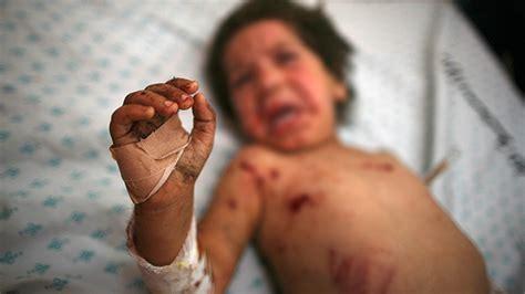 imagenes de niños que mueren de hambre video impactante cuatro ni 241 os mueren en un ataque israel 237