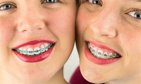 braces colors that make teeth look whiter coloured braces daher orthostyle vancouver bc