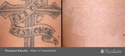 calgary tattoo removal calgary removal clinic take it faster results