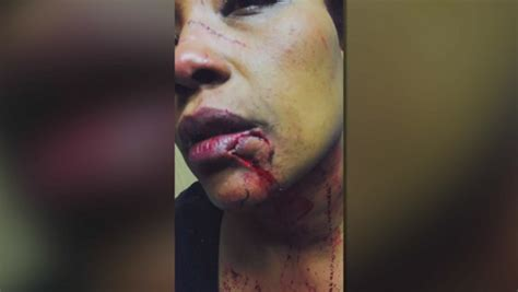 Can I Go To America With A Criminal Record 2013 Attacked With Glass In Minnesota Because She Spoke Swahili Language