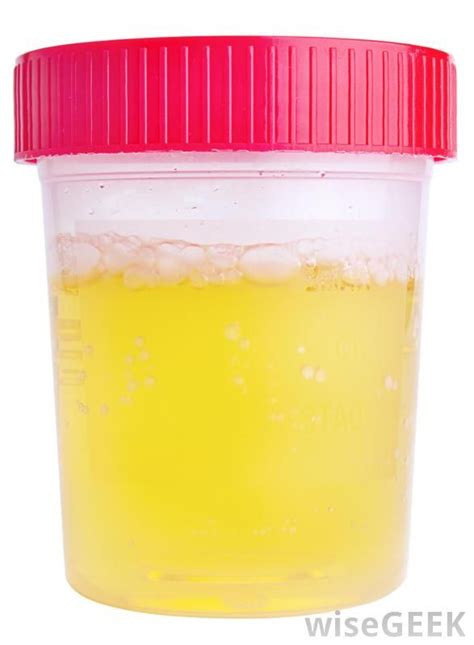 Protein Urine 17 Best Images About Protein In Urine On