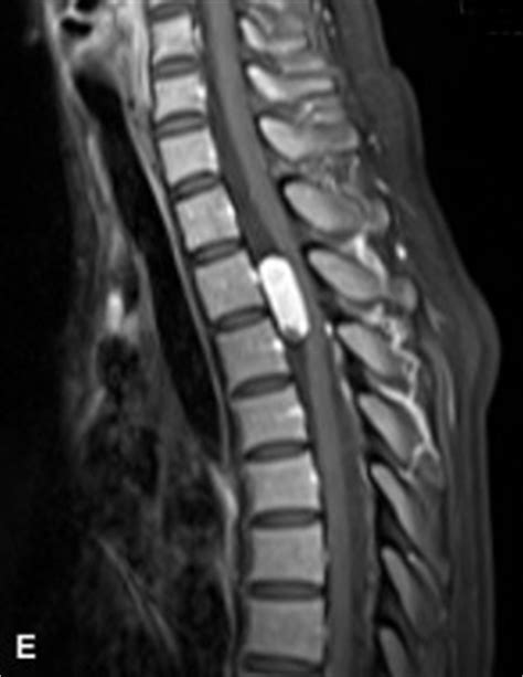 Thoracic spine schwannoma — Clinical MRI