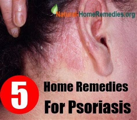 5 home remedies for psoriasis remedies for