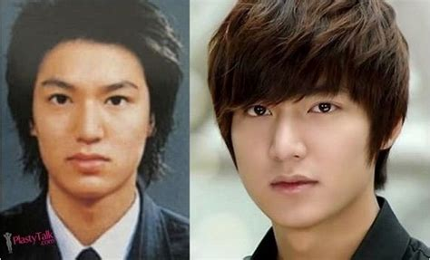 facts of korean actor lee min ho plastic surgery the korean actors actresses before and after plastic surgery
