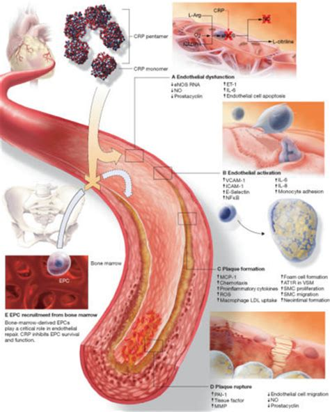 c protein inflammation and cardiovascular drugs dolcerawiki