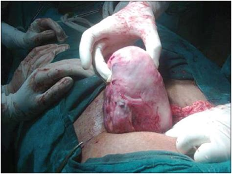 period 4 weeks after c section successful pregnancy outcome in an untreated case of