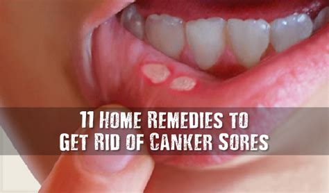 home remedies canker sores on gums