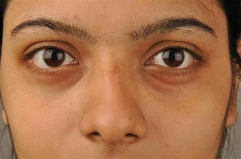 black under eye how to instantly remove dark circles and feel rejuvenated