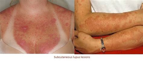 sle of use lupus rash types effects diagnoses treatments prevention and pictures details