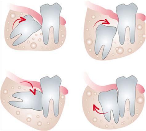 dente giudizio mal di testa denti inclusi e denti ritenuti sintomi cause e trattamenti