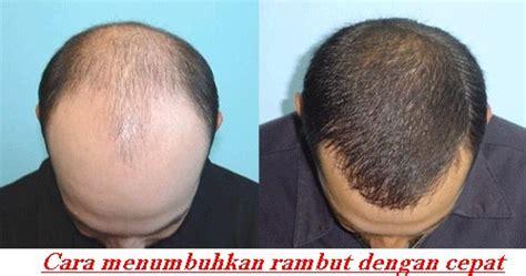 Cara Cepat Menumbuhkan Rambut Dengan Green Alami 8 cara menumbuhkan rambut dengan cepat dan alami