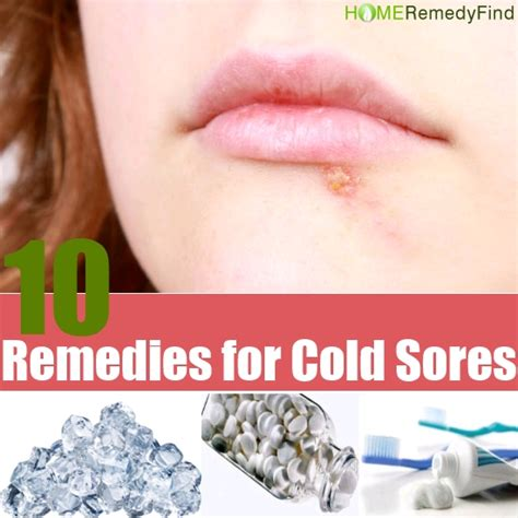 Home Treatment For Cold Sores by 10 Home Remedies For Cold Sores Diy Find Home Remedies