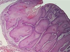 Verruca Plana Pathology Outlines by Pilar Sheath Acanthoma