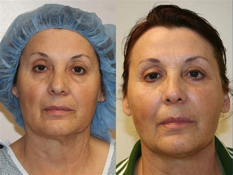 fat grafting plastic surgery before after fat grafting to face 5 orange county
