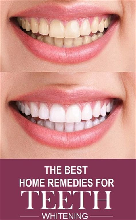 teeth whitening how to get white teeth at home styles