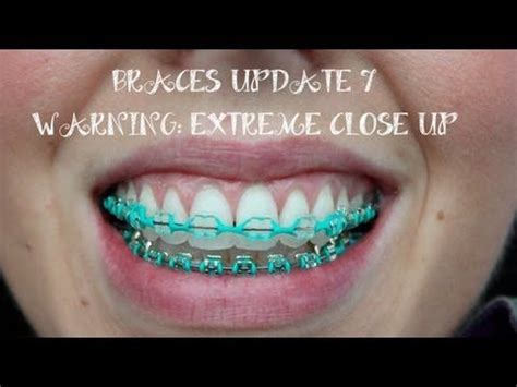 color bands for braces clear braces colored bands braces color bands 183 clear