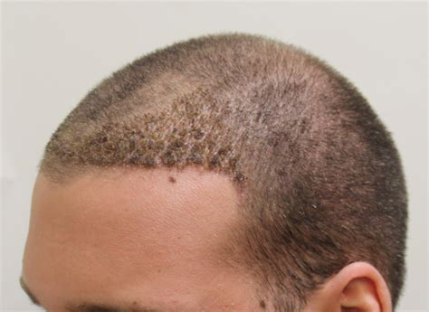 Hair Shedding After Hair Transplant by Day 10