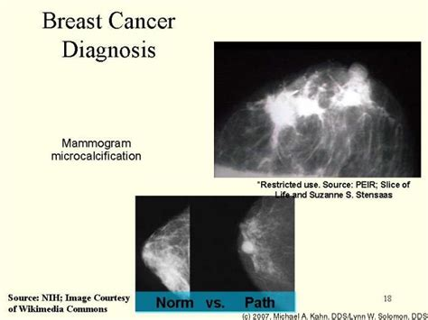 diagnosis cancer what happens next books 31 873 basic human pathology parts i and ii academic