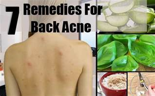 back home treatment 7 home remedies for back acne treatments cure