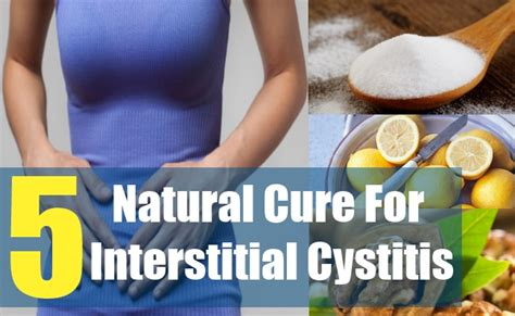 5 cure for interstitial cystitis how to cure