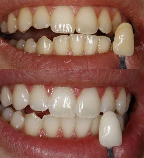 teeth whitening dentist rancho cucamonga
