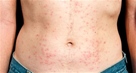 hot shower scabies psoriasis vs folliculitis know the facts