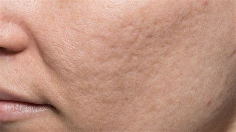 Acne Scar how to get rid of acne scars with the best