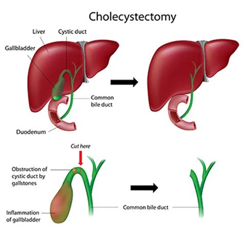 Post Operative Liver Detox by What Is A Cholecystectomy Removal Of Gallbladder Sussex