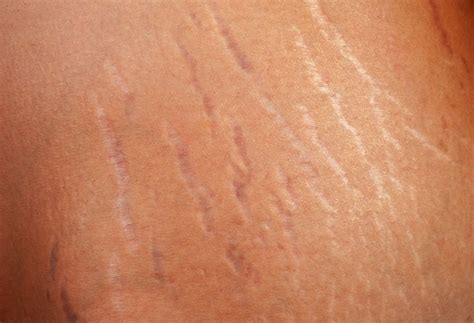 Stretch Marks by 12 Ways To Get Rid Of Stretch Marks 9 Is