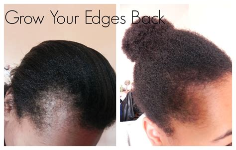 natural hair blogs for black women bald spot get those edges back how i grew out my edges and bald