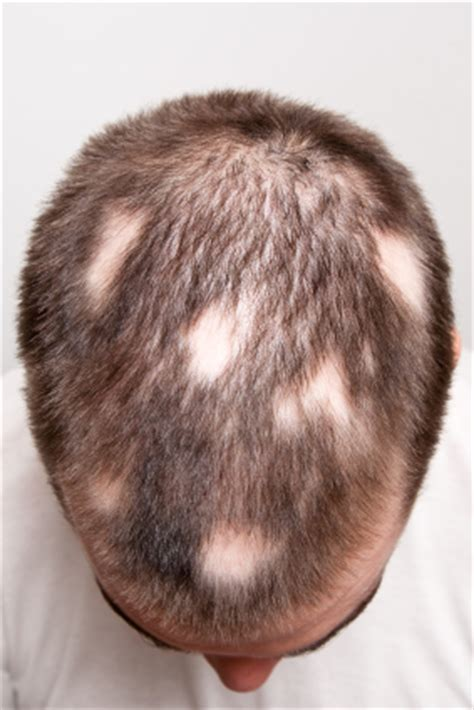 Types Of Hair Loss Diseases by Defining And Treating Alopecia Areata Medically Speaking