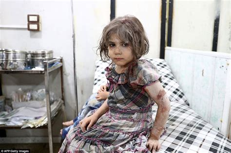 Child In The War syrian war child victims shown in harrowing pictures